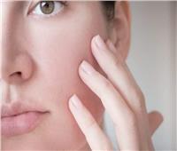 مشاكل جفاف الجلد في فصل الشتاء | نصائح صحية