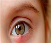 تحذير من العلاجات المنزلية لـ«دمل الجفن»