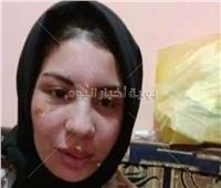 ننشر أول صورة لضحية عنف زوجها بالإسكندرية بعد تعافيها