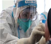 وفاة 3 مصابين بكورونا في رومانيا نتيجة أجهزة تنفس تالفة