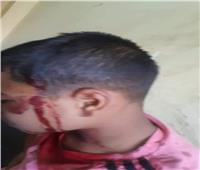 عاطل يتعدى على تلميذ ويصيبه بسلاح أبيض في نجع حمادي | صور