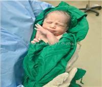 نجاح عملية ولادة قيصرية لمريضة كورونا بمستشفى العزل بكفر الدوار | صور