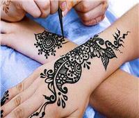 قبل العيد| للفتايات.. احذرن الحنة السوداء تسبب حروق الجلد
