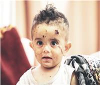 مجزرة جديدة ترفع الشهداء لـ٢٠٠.. والنيابة العامة تٌوثق جرائم الاحتلال