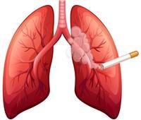 حسام موافي: إصابة المدخنين بسرطان الرئة أهون من التمدد الهوائي | فيديو