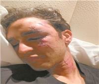 صدمة توقف أفراح الفروسية في سويسرا.. محمد طاهر يتعرض لحادث سير