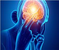 دراسة تكشف العلاقة بين الصداع النصفي والإصابة بالدوار| فيديو