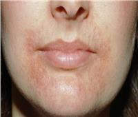 نصائح للسيطرة على التهاب الجلد حول الفم