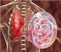 استشاري أمراض جرثومية: التحذيرات من التحورات الجديدة واقعية