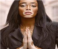 في خطوتين.. تعلم طرق الدعم النفسي لمرضى «البهاق»