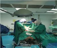 ولادة قيصرية لسيدة يشتبه بإصابتها بفيروس« كورونا »بمستشفي دمياط العام