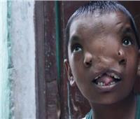 طفلة هندية مولودة بأنفين تتحول لإله في الهند