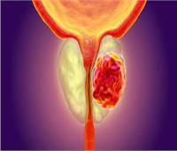 """لمرضى سرطان البروستاتا.. """"علاج ثوري"""" جديد والمدة مفاجأة"""