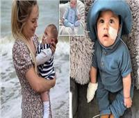 بسبب مرض غامض طفل رضيع يعاني من طفرة جينية لمرض «TBCD» بكندا