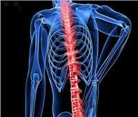 أستاذ جراحة يكشف أسباب انحناء الظهر وهشاشة العظام