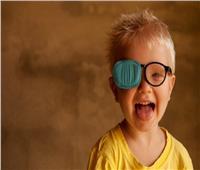 استشاري عيون: «الحول» قد يؤدي لفقدان البصر نهائيًا