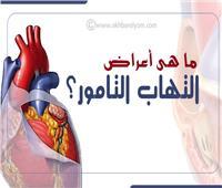 إنفوجراف | 7 أعراض عند الإصابة بـ«التهاب التامور»
