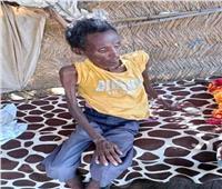 أطفال تيجراي يستغيثون من إبادة نظام آبي أحمد | صور