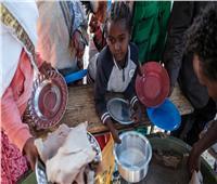 سوء التغذية يفتك بأطفال تيجراي