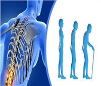 أسباب وعلاج مرض هشاشة العظام