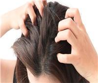 هاني الناظر يوضح طريقة التخلص من أمراض الشعر