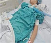 اشتعال النيران بجسد طفلة أثناء طهي الطعام في الشرقية