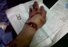 عاطل يقطع يد سائق في مشاجرة دامية بموقف الفجالة