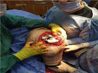 اثناء جراحة استبدال مفصل الركبة بمفصل صناعي  بمستشفي الزرقا