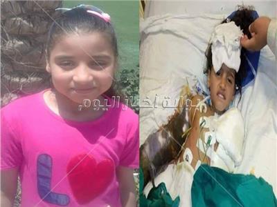 الطفلة «ريماس» ضحية كابلات الكهرباء المكشوفة