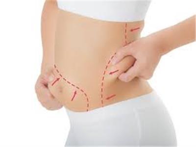 %65 من النساء يقصدن عيادات التجميل لإزالة الدهون والشحوم
