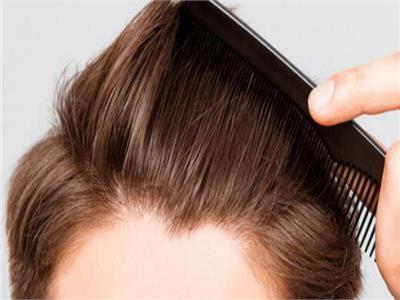 تعرفِ على| أحدث التقنيات المستخدمة في عمليات زراعة الشعر