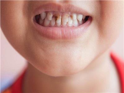 تعرفي على .. فائدة الفلورايد لحماية أسنان أطفالك من التسوس