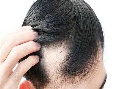 شادي سامي يكشف أحدث طرق زراعة الشعر