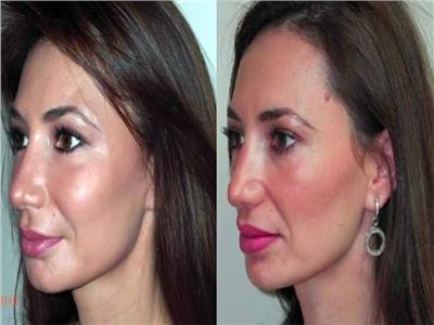 حقن الدهون في الوجه