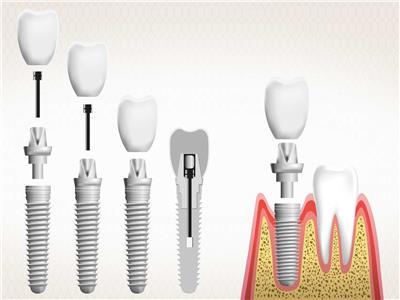 عمليات زراعة الأسنان