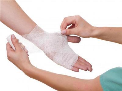 5 أخطاء تزيد الأمر سوءا عند التعامل مع حروق الجلد