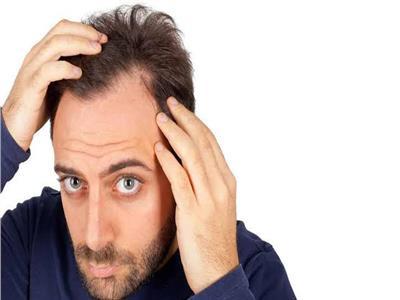 زراعة الشعر (أرشيفية)