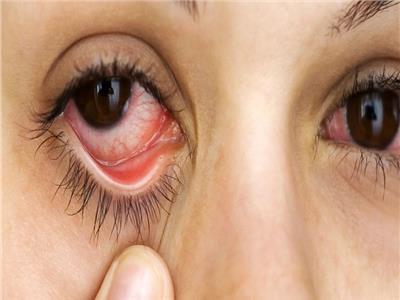 6 نصائح لعلاج جفاف العين