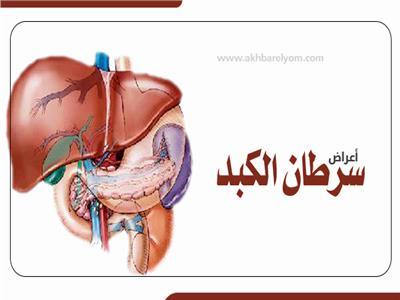 إنفوجراف   أعراض سرطان الكبد