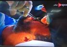 جراحة عاجلة لحارس الإسماعيلي بعد إصابته في مباراة المصري