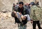 اليونيسف: ثلث الأطفال في الغوطة الشرقية بريف دمشق يعانون من سوء التغذية