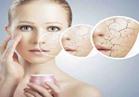"""6 نصائج للتخلص من جفاف الجلد """"القشف"""""""
