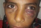 فتح تحقيق شامل في واقعة الاعتداء على طالب بدمياط