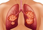 دراسة: العلاج الهرموني للغدة الدرقية يساعد في شفاء الرئة
