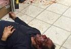 بالفيديو..القصة الكاملة لحادث الاعتداء على مصري بالكويت