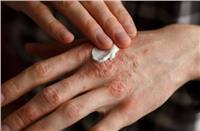 هاني الناظر يوضح أفضل طريقة لعلاج «الصدفية»