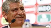 مدرب البرتغال: سنقاتل للفوز بمونديال روسيا