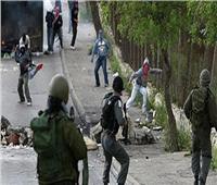 إصابة 4 فلسطينيين برصاص الاحتلال الإسرائيلي جنوب قطاع غزة