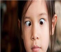 تعرف على أسباب الإصابة بالحول الشللي عند الاطفال