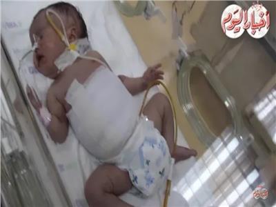 """فيديو """"وعد"""" طفلة حملت توأمها في بطنها"""